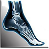 Cornerstone Foot and Ankle | Podiatry Blog