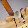 GP Dental Lab